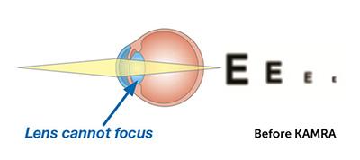 presbyopia before KAMRA Inlay