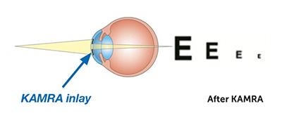 presbyopia after KAMRA Inlay